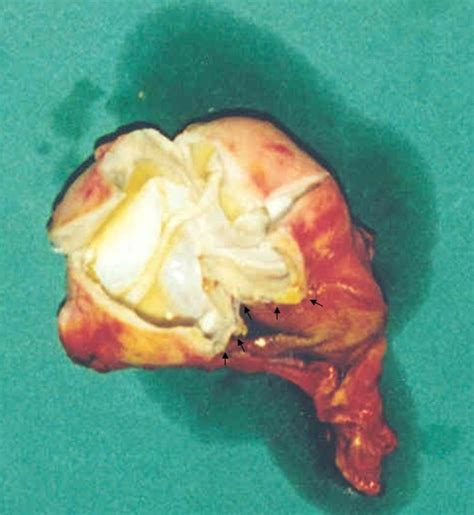 Primary hydatid cyst of the gallbladder: a case report